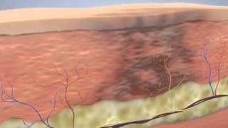 Como aparecem os hematomas e como SpiderTech pode ajudar