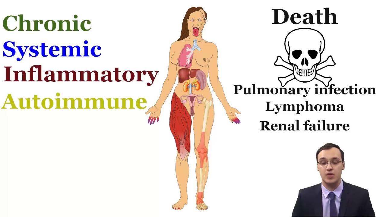 Autoimmun betegségek: kisszótár Hogyan fáj az ízületek sjögren-kórban