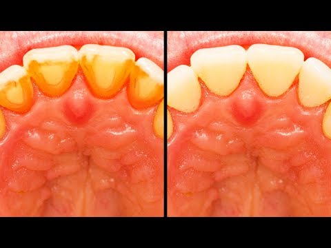 15  EASY TEETH HACKS THAT WILL CHANGE YOUR LIFE