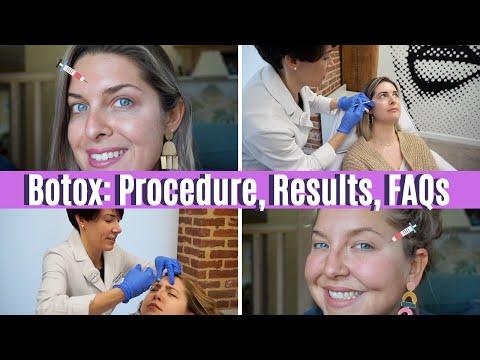 BOTOX/DYSPORT: Procedure, Results & FAQs