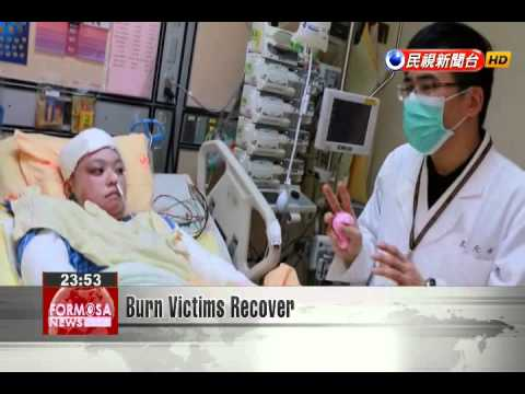 Burn Victims Recover