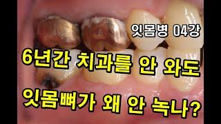6년간 치과를 안 와도, 이를 안 닦아도 잇몸뼈가 안 …