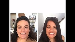 Smile Makeover in 8 days in Cancun 70% less than US