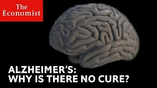 Why is Alzheimer's still a medical mystery? | The Economist