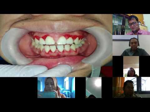 Airlangga Dental Telemedicine - Dentolaser Untuk Terapi Periodontitis
