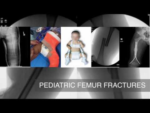 Single Leg Spica Cast Application for Treatment of Pediatric Femoral Fracture