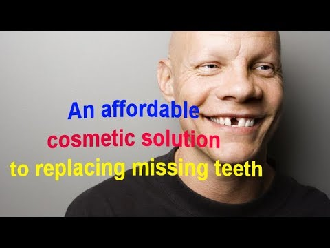 An Affordable Cosmetic Solution to Replacing Missing Teeth