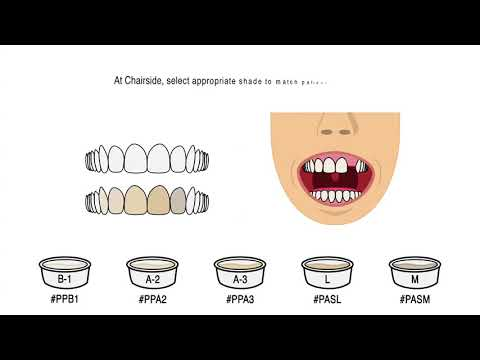 Delivering Pontic Via Clear Aligners