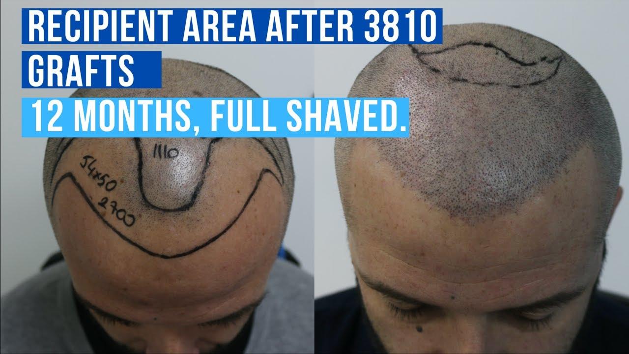 Hair Transplant Turkey 3810 Grafts: No DHI Hair Transplant (2020)