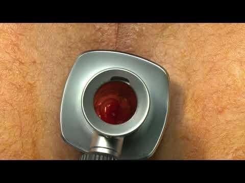 МТ ТЕХНИКА: Легирование геморроидальных узлов латексными кольцами
