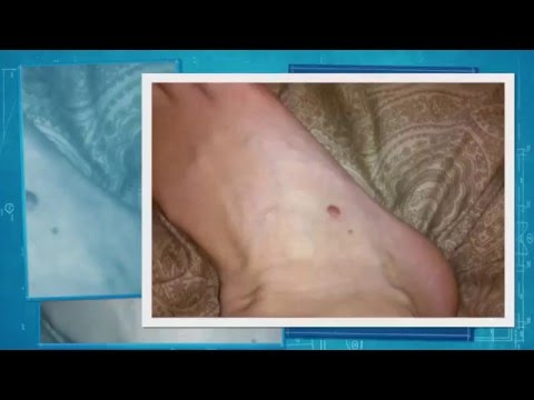 A Video About Mole Removal
