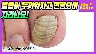 무좀발톱 조갑구만증! 발톱이 두꺼워지고 변형되어 자라나요! 스케일링 후 편안해진 발톱~^^ thick toe nail treatment