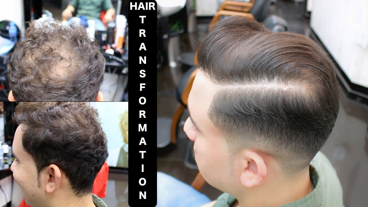 how to cover bald spot with a haircut★men's hairstyles✔️