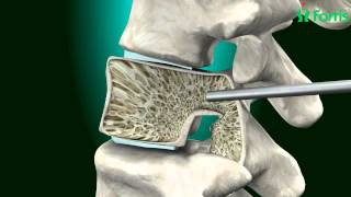 Vertebroplasty & Kyphoplasty ( Spine Surgery) Neuro Surgery; Fortis Healthcare,India