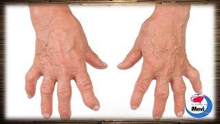 Remedios caseros para la artritis reumatoide(, 2014-11-17T15:33:21.000Z)