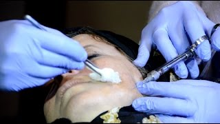 أخبار اليوم | بدائل طبية جديدة لعمليات التجميل بـ