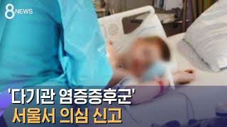 13개국 번진 '다기관 염증증후군', 서울서 의심 신고…