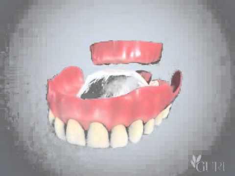 Dentier Haut 3