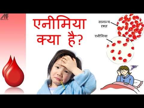 Anemia Causes, Types, Symptoms, Diet and Treatment in Hindi   How to cure anemia at home in Hindi