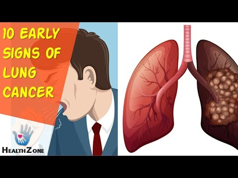 10-early-signs-of-lung-cancer