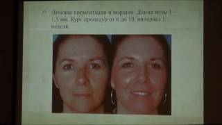 Дермароллер в практике косметолога