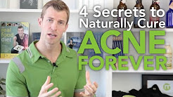 hqdefault - How Can You Clear Up Acne Naturally