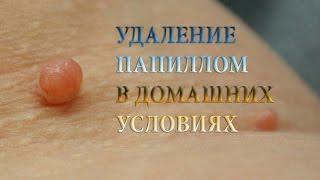 Смотреть видео как удалить папилломы