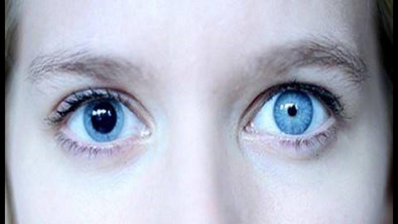 pupilele dilatate au o vedere slabă