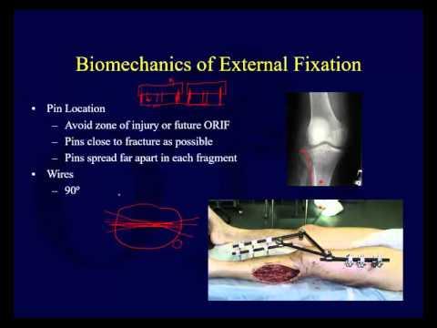 Orthopaedic Implants 2 - External Fixation