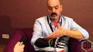 3D Printing In Prosthetics: Interview With Nigel Ackland