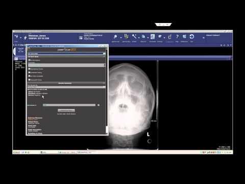 PeerVue QICS For Rad-ED Communication (McKesson)