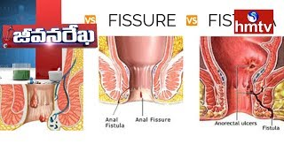 Piles, Fissures And Fistula Causes andamp; Treatment | Homecare International | Jeevana Rekha | hmtv