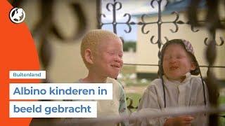 Student maakt stiekem documentaire over albinismekamp