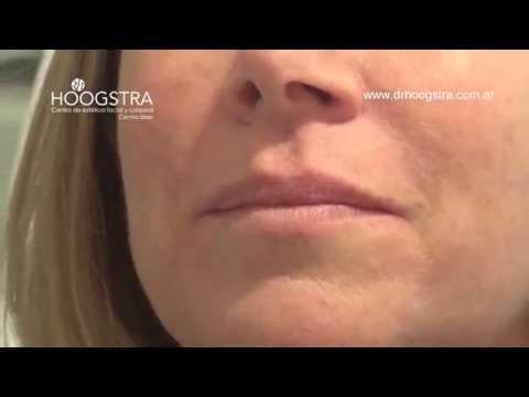 Relleno de surcos y labios (15005)