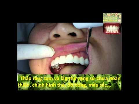Làm răng sứ Cercon BacsiThang NhakhoaHappy Smiles Land