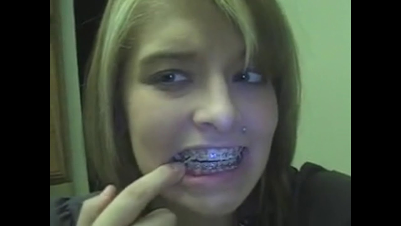 Beautiful Girls Show Off Their Braces And Elastics 5 Youtube