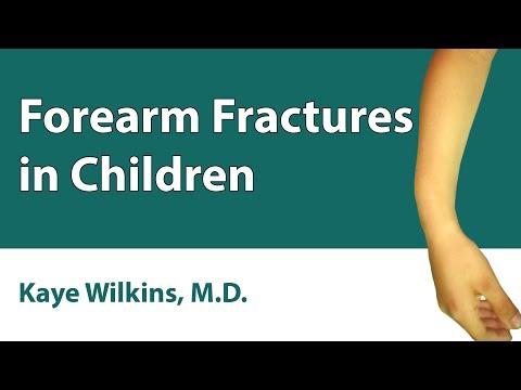 Forearm Fractures In Children
