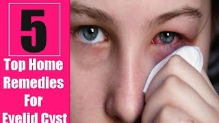 5 Home Remedies for Eyelid Cysts - Authority Remedies.