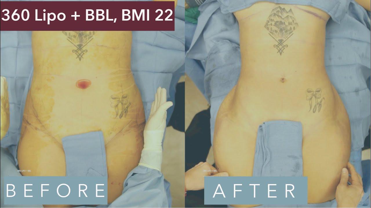 22 female pictures bmi Body Fat