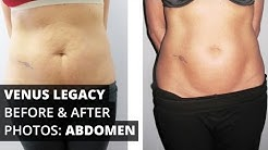Venus Legacy™ Before & After Photos: Abdomen
