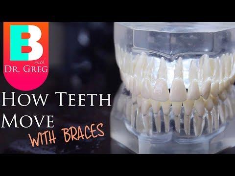 Braces Explained: How Teeth Move / Braces Work