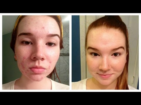 how-i-cleared-my-acne-(+-before-&-after-pictures)