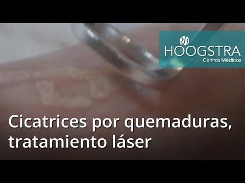 Cicatrices por quemaduras, tratamiento láser (17108)