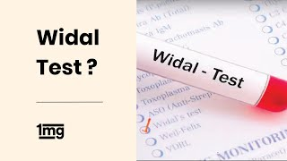 How is Widal Test done for Typhoid Fever? | 1mg