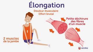 Soigner une élongation - Ooreka.fr