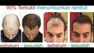 TERBUKTI!! 10 Cara Menumbuhkan Rambut Botak dengan Cepat Secara Alami