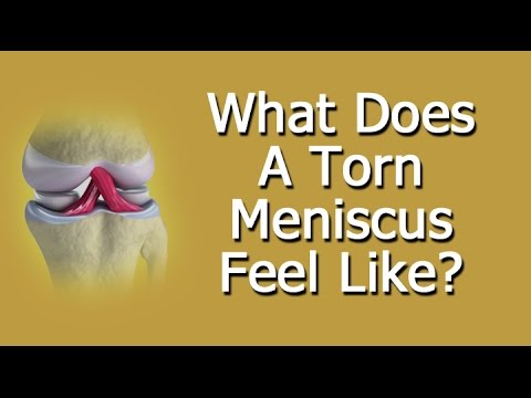 What Does Torn Meniscus Feel Like