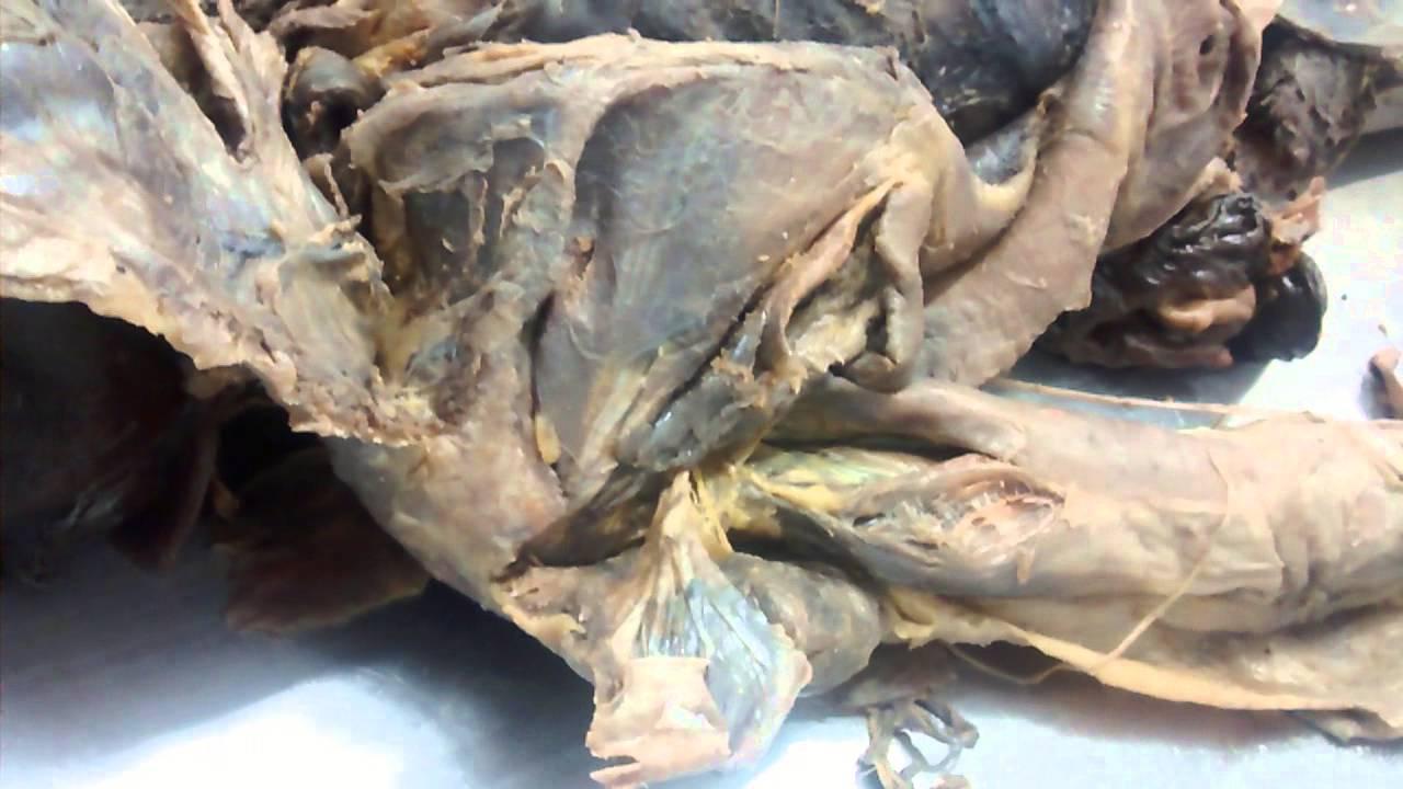 Anatomia de dorso, axila, región deltoides 1 3ER CORTE - YouTube