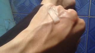 tca peeling 10 at hands result