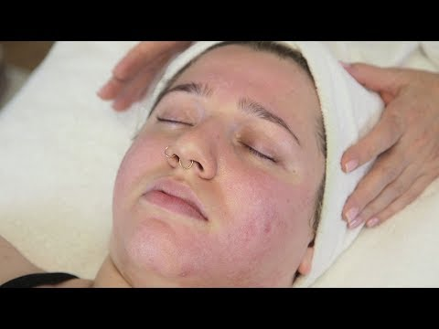 Facial Scarring Refinements: The Lactic Peel
